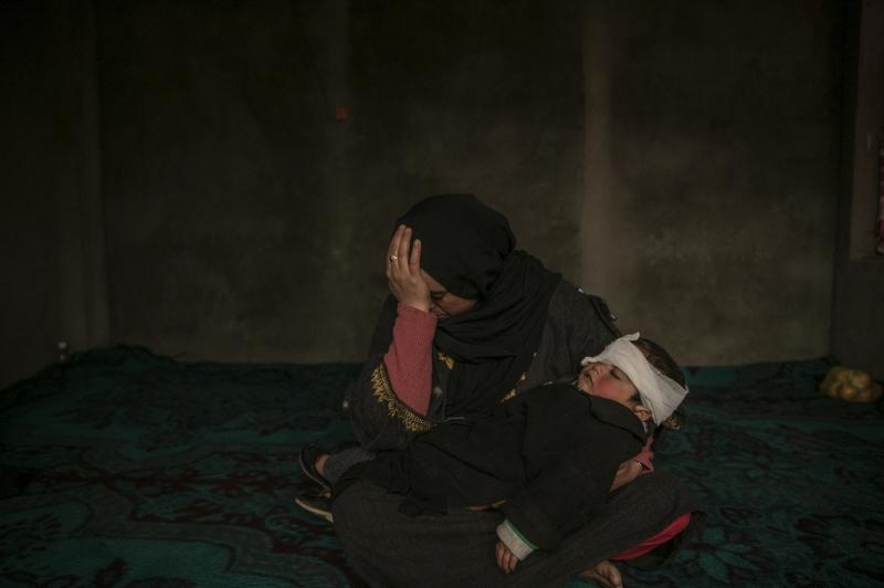 The Youngest Kashmir Pellet-Gun Victim