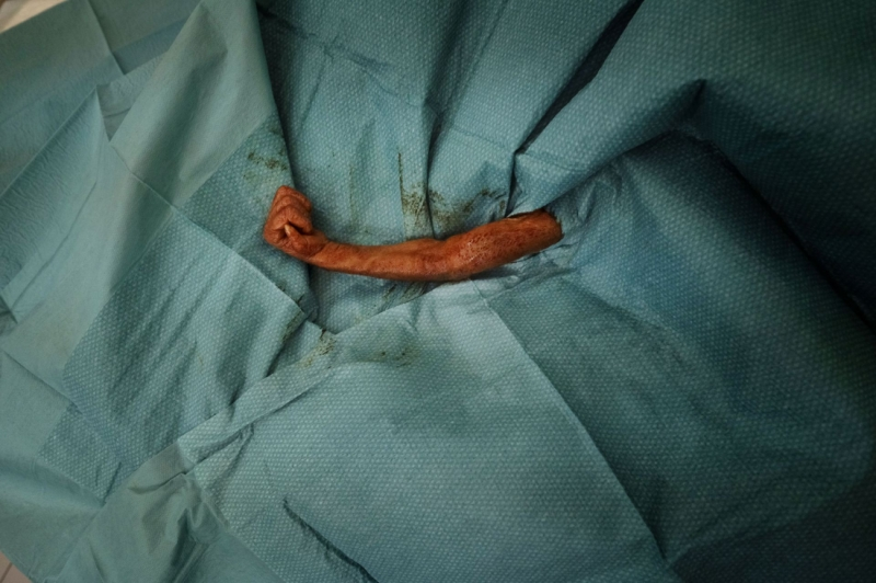 Baby Orangutan Surgery