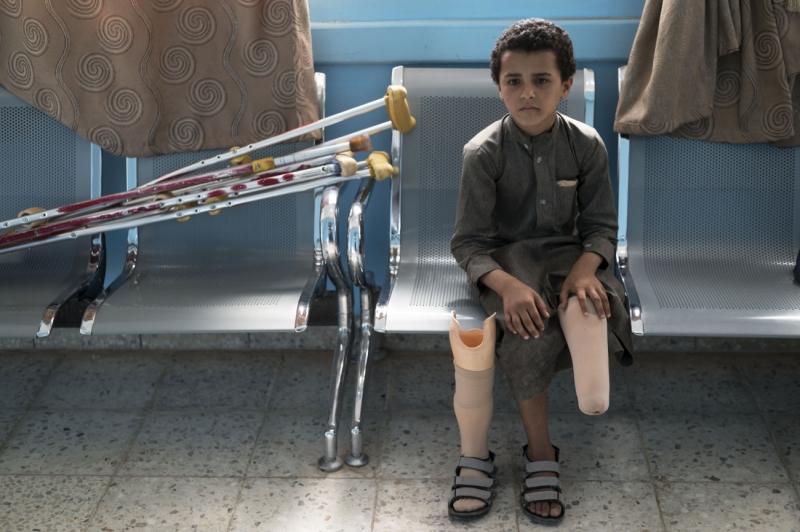 Child amputee Yemen